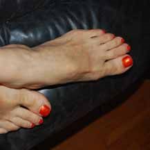 Plantar Faciitis Can Be Treated Naturally