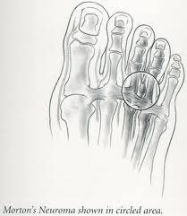 Minimalist Running Shoes Morton S Neuroma