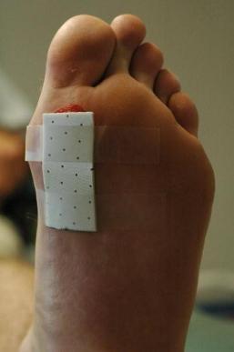 The Toe Pad